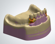 Valplast-CAD_Capture_Left21