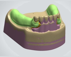 Valplast-CAD_Capture_Left_2