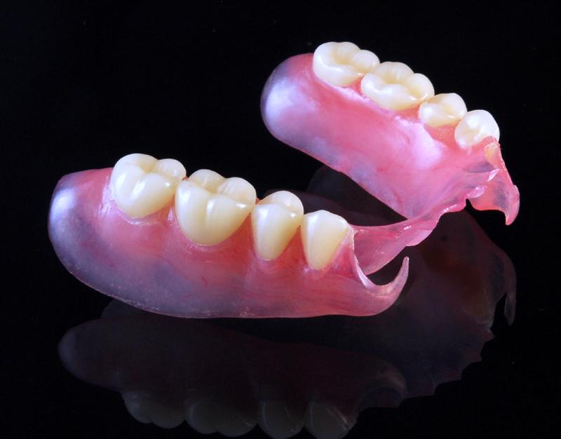 partial dentures | Udell Dental Laboratory